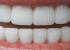 Забите ви се пожолтени? Еве како да ги обелите природно за само 3 минути